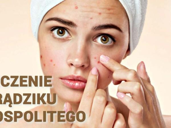 Leczenie trądziku pospolitego. Dermatolog Wrocław. Przychodnia Wrocław. Centrum Medyczne PRZYJAŹNI