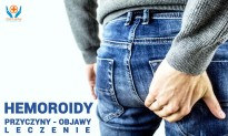Hemoroidy – przyczyny, objawy, leczenie